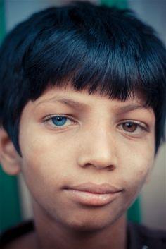 Heterochromia iridum Photo credit: Muktar Hossain