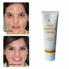 FOREVER ALOE PROPOLIS CREME. – Aloe Vera et santé Crème Aloe Vera, Aloe Vera Skin Care, Aloe Vera Gel Forever, Forever Living Aloe Vera, Forever Aloe Berry Nectar, Forever Cosmetics, Sculpter Son Corps, Forever Living Business, Creme Anti Age