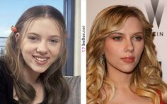 Scarlett Johansson Nose Job ~ A'me Miller Flowers via A'me Miller Flowers onto People I'd like to punch in the throat. Scarlett Johansson, Beauty Tips For Skin, Beauty Hacks, Hair Beauty, Bad Nose Jobs, Actress Without Makeup, Nose Makeup, Rhinoplasty Surgery, Celebrities Before And After
