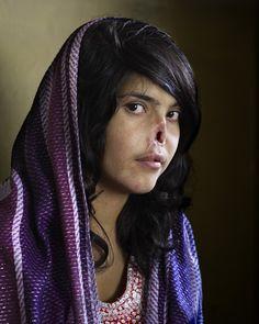 Bibi Aisha, une jeune Afghane mutilée, par les Afghans .