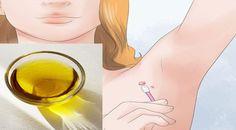 4) Ananasová šťáva Aplikujte čerstvou ananasovou šťávu každý den, několikrát do dne na kožní výrůstek. Šťávu nesmývejte, ale nechte ji působit průběžně. Opakujte tento proces zhruba 10 dní dokud výrůstek úplně nezmizí. Tato metoda je účinná i na bradavice a mateřská znaménka. Ananas totiž obsahuje enzymy, které pomáhají tyto útvary rozložit. 5) Ricinový olej a …