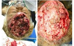 These are tape worms in this woman's brain from eating contaminated pork.