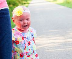 Mom of daughter with rare disorder called Harlequin Ichthyosis writes letter for parents of children who point and stare at others with disabilities. Parenting Articles, Parenting Hacks, I Wish You Would, Attachment Parenting, Gentle Parenting, Our Kids, Early Childhood, Teaching Kids, Baby Love