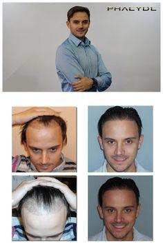 Hår implantation af 5000 hår- PHAEYDE Klinik  Miklos havde balding problemer i hans templer = zone 1 & 2. hårtransplantation behandling blev foretaget med lange hår. Kun donor zone blev cutted kort, implantation var mellem lange hår. Lavet af PHAEYDE Klinik.  http://dk.phaeyde.com/har-implantation