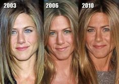 Jennifer Aniston has had help from Botox, Fillers, probably peels, laser skin resurfacing and laser skin tightening to help her keep looking this young with every passing year Nose Fillers, Botox Fillers, Facial Fillers, Jennifer Aniston Plastic Surgery, Facial Cosmetic Surgery, Laser Skin Tightening, Stars D'hollywood, Double Menton, Botox Before And After