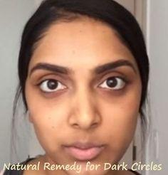 Natural Remedy for Dark Circles Under Eyes