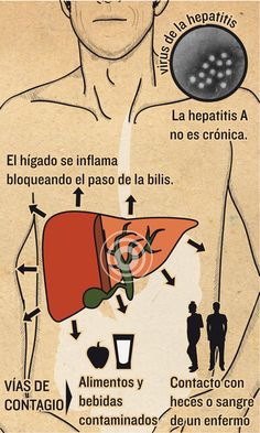 Hepatitis A | Magazine | Infografía salud