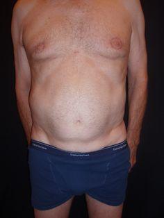 older man torso