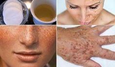 Nous voulons tous un visage propre et éclatant. Personne n'aime pas l'acné, les boutons, la rougeur, ou les souches. Il existe des milliers de produits cosmétiques sur le marché disant efficaces, mais ils sont plus coûteux avec des effets secondaires néfastes pour la santé, c'est la raison pour laquelle nous vous proposons une alternative 100% …