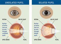 What is a comprehensive dilated eye exam? A comprehensive dilated eye exam is a painless procedure in which an eye care professional examines your eyes to look for common vision problems and eye diseases, many of which have no early warning signs. Regular comprehensive eye exams can help you protect your sight and make sure that you are seeing your best.