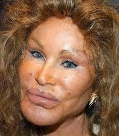 6 Celebrity Plastic Surgeries Gone Wrong! - Page 4 of 6 - Amazing, Weird, and Bizarre