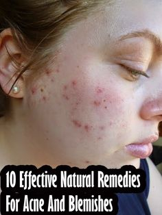 Can vitamin b cause pimples photo 7