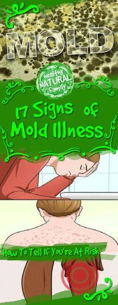 17 Signs Of Mold Illness (And How To Tell If Youre At Risk)