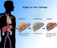 Move it: Beating Fatty Liver Step by Step #fatty #liver #diet