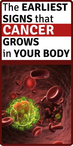 The Earliest SIGNS That CANCER GROWS in Your Body Cancer is one of the leading causes of death in the world, and as soon as it is discovered, there is a greater chance that it will grow Signs Of Lung Cancer, Cancer Sign, Cancer Facts, Cancer Cure, Health And Wellness, Health Tips, Health Fitness, Health Essay, Health Care