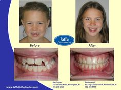 Audrey Orthodontics, Portsmouth, King Charles, Ava, Photos, Pictures, Cake Smash Pictures
