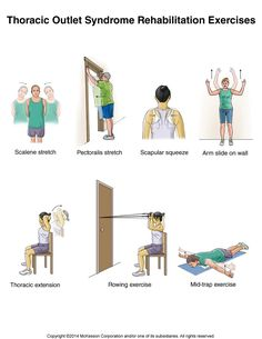 Summit Medical Group - Thoracic Outlet Syndrome Exercises