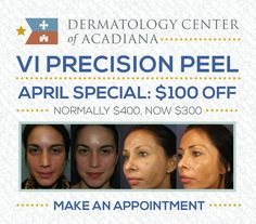 #AprilSpecials Just a few days left to take advantage of our $100 OFF sale on VI Precision Plus Peel!  This peel is perfect for you if you're looking to improve your skin's tone and texture, as it it clears up age spots, redness, and acne. It also helps with anti-aging, since it softens lines and wrinkles while stimulating collagen production for firmer, more youthful skin.  Call (337) 235-6886 to make an appointment today!