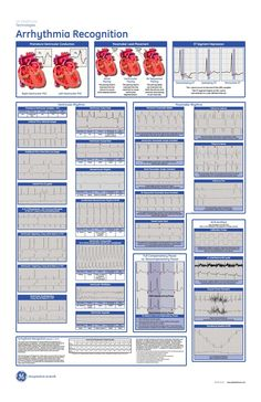 arrhythmia recognition poster, they have a huge one on my floor! Love this!