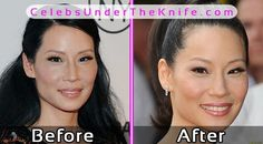 Lucy Liu Plastic Surgery Before After Photos #celebsundertheknife #celebs #celebrity #plasticsurgery #celebritysurgery