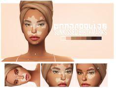 Sunkissed Birthmarks Sunkissed Birthmarks Vitigilo 22 Colors By Cakenoodles Via Tumblr Skindetail Lipmole Tattoo The Sims 4 Skin Sims Sims 4 Tattoos