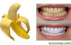 Blanqueamiento de dientes con cascara de banana. Frota durante 2 min. Y enjuaga...listo