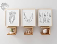 Dental anatomy print set of 3 in your choice of gold, silver, or rose gold foil. Great for dental of Dental Office Decor, Dental Office Design, Office Art, Design Clinique, Medical Student, Medical Art, Dentist Clinic, Dental Anatomy, Cabinet Medical