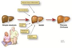 Non-alcoholic fatty liver disease (NAFLD) is  common & refers to a group of conditions,…of excess fat in the liver of people who drink little or no alcohol. The most common form is  fatty liver…..Although having fat in the liver is not normal, by itself it probably does not damage the liver. A small group of people with NAFLD may have a more serious condition named non-alcoholic steatohepatitis (NASH).