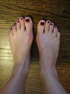 Running 5 Miles at 5 months after my double bunionectomy?! | #Bunions Be Gone