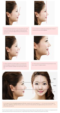 [Facial contouring - Ideal location of chin] plastic surgery in korea, cosmetic surgery in korea, jaw reduction, facial bone contouring, jaw surgery, chin surgery, chin augmentation, short chin