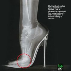 "I know they ""look good"" but look what high heels do to your feet."