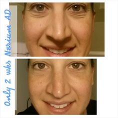 And this is me. I have the results!!! laceyface.nerium.com
