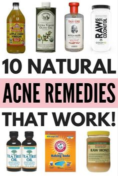 Looking for natural acne remedies to teach you how to get rid of acne (and the pimples and blackheads that come along with it) without using harsh products on your skin? We've got you covered. Using ingredients like coconut oil, raw honey, baking soda, ap Natural Acne Remedies, Home Remedies For Acne, Skin Care Remedies, Homemade Acne Remedies, Hormonal Acne Remedies, Asthma Remedies, Pimples Remedies, Coconut Oil For Acne, Coconut Oil Uses