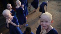 Verminkte albinokinderen krijgen prothesen in VS | NOS