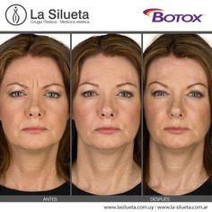 BOTOX® es la marca comercial registrada de Toxina Botulínica Tipo A más estudiada y más utilizada en el mundo entero. La Toxina Botulínica Tipo A es una proteína que relaja temporalmente el músculo en el que se aplica atenuando las arrugas de expresión, aquellas que se forman con el rostro en movimiento.   Másinfo en: http://www.lasilueta.com.uy