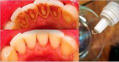 Este tratamento caseiro, além de eliminar o tártaro, deixa os dentes com um branco perfeito.