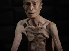 Nagasaki and Hiroshima anniversary: Powerful photos of survivor show effects of atomic bomb 70 years on - Asia - World - The Independent