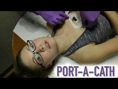 Here Lisa:  HOW TO ACCESS A PORT-A-CATH (IMPLANTED PORT) - YouTube