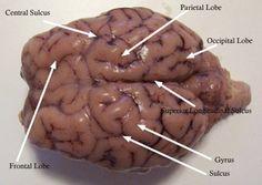 Brain: cerebral hemispheres (right and left); frontal lobe, parietal lobe, occipital lobe, temporal lobe, gyrus, sulcus, superior longitudinal fissure, cerebellum, central sulcus, lateral fissure, corpus callosum