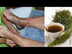 Mejora la mala circulación sanguiea con estas 6 excelentes plantas medicinales - YouTube