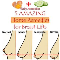 """6,171 Likes, 1,605 Comments - DIY REMEDIES (@diy.remedies) on Instagram: """"There are different causes that underlie a possible slackness of the breasts, starting from…"""""""