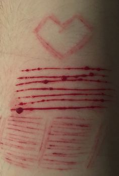 self harm // collection
