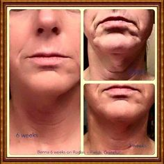 Do you have loose skin, wrinkles or a turkey neck? Rodan+Fields is proven to work. The fastest growing skin care in the nation.It comes with a 60 day, empty bottle guaranty.Lets talk! Rodan And Fields Reverse, My Rodan And Fields, Rodan And Fields Business, Rodan And Fields Redefine, Amp Roller, Roden And Fields, 60 Day Challenge, Rodan And Fields Consultant, Types Of Acne