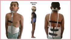 Image result for milwaukee brace Milwaukee Brace, Braces, Image, Suspenders, Dental Braces