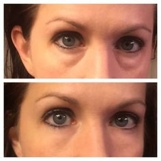 Instantly Ageless...no more under eye bags, flawless! Lisaamar.jeunesseglobal.com