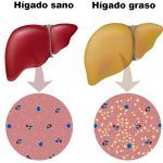 Fatty liver is one the difficult stage of men and women. Here are the top 22 home remedies for fatty liver that cures liver issues and eliminating the excess fat. Liver Detox Symptoms, Home Remedies For Hemorrhoids, Snoring Remedies, Circadian Rhythm Sleep Disorder, Cure For Sleep Apnea, Detox Your Liver, Healthy Liver, Metabolic Syndrome, Vestidos
