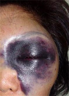 This woman got hit in the eyelid with a paper clip. Just a regular paperclip at…