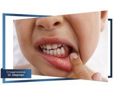 Лечение воспаления десен. Часть 1. #воспаление #статья #зубы #стоматология   Причины воспаления десен  Причины делятся на две основные группы: местного характера, которые вызываются наличием болезнетворных бактерий, и внутреннего характера, обусловленные заболеваниями внутренних органов.  Наиболее распространенными причинами являются:  1. Некачественный уход за состоянием зубов и десен. В результате недостаточных гигиенических мероприятий, направленных на подержание здоровья ротовой полости…