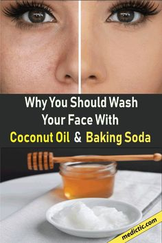 This baking soda and coconut oil face mask for acne scars can deeply cleanse the skin, exfoliate, and forestall acne beat one! You've undoubtedly seen tons of baking soda and coconut oil face mask recipes everywhere Good Skin Tips, Skin Care Tips, Organic Skin Care, Natural Skin Care, Natural Health, Anti Aging, Natural Bleach, Baking Soda Shampoo, Coconut Oil For Face