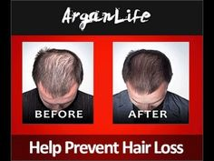 Hair loss has pass into model common in both men and women. There can be divers different causes for hair loss in women, relating, heal. Natural Hair Regrowth, Natural Hair Styles, Long Hair Styles, Pure Argan Oil, Organic Argan Oil, Argan Oil Before And After, Argan Oil For Hair Loss, Herbs For Hair Growth, Hair Growth Treatment